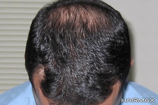 na resultaat hairmax laserkam tegen haaruitval