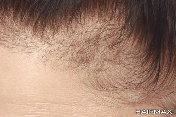 voor resultaat hairmax laserkam tegen haaruitval