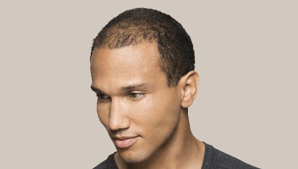 voor resultaat Toppik Hair Fibers tegen haaruitval