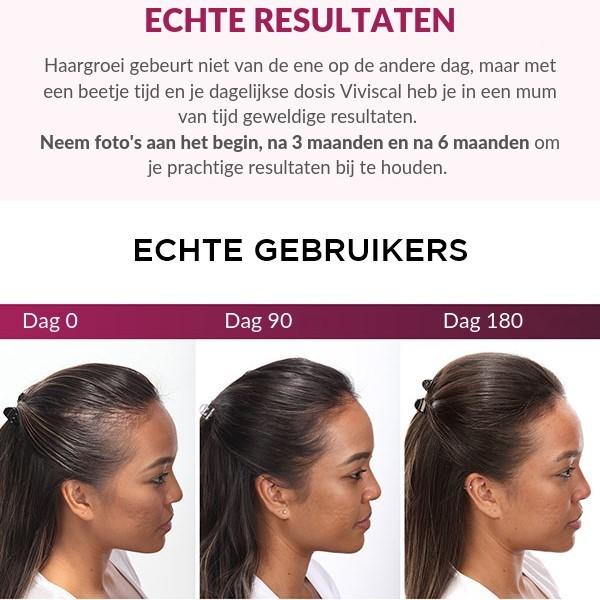 voor en na viviscal haargroei supplementen