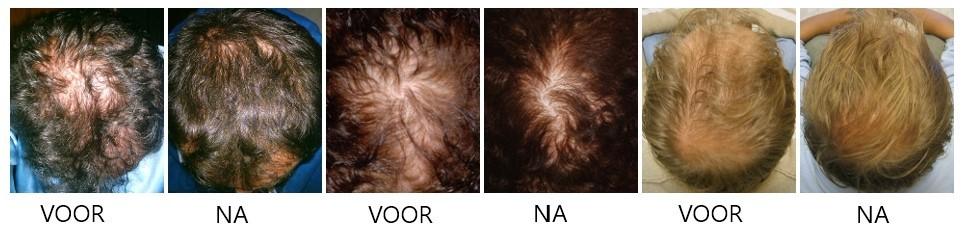 voor en na revivogen scalp therapy